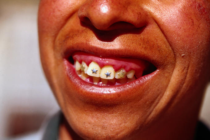 Bronze and gold star cavity fillings on teeth of indigenous man.